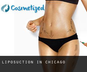 Liposuction in Chicago