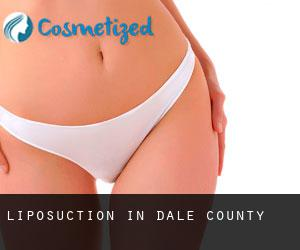 Liposuction in Dale County