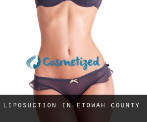 Liposuction in Etowah County
