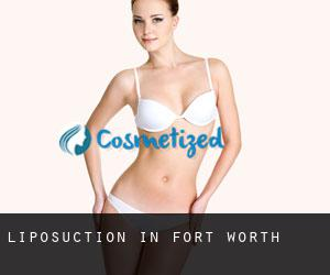 Liposuction in Fort Worth