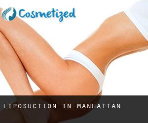 Liposuction in Manhattan