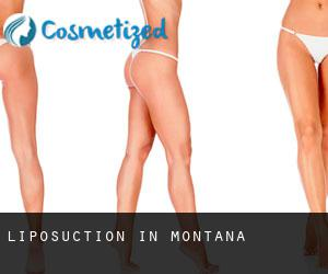 Liposuction in Montana
