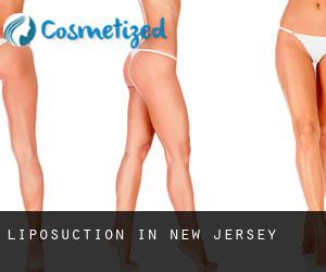 Liposuction in New Jersey