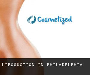 Liposuction in Philadelphia