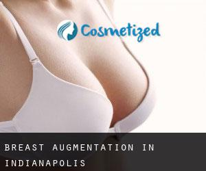 Breast Augmentation in Indianapolis