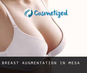 Breast Augmentation in Mesa