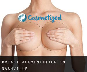 Breast Augmentation in Nashville