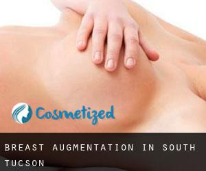 Breast Augmentation in South Tucson