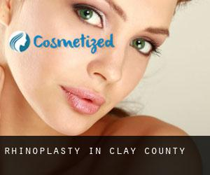 Rhinoplasty in Clay County
