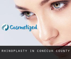 Rhinoplasty in Conecuh County