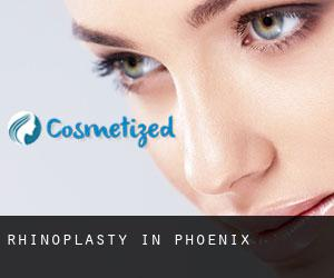 Rhinoplasty in Phoenix
