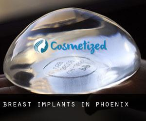 Breast Implants in Phoenix