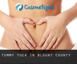Tummy Tuck in Blount County