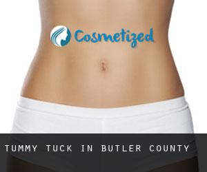 Tummy Tuck in Butler County