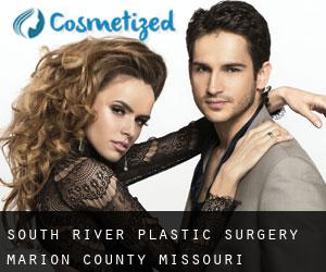 South River plastic surgery (Marion County, Missouri)